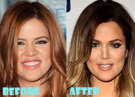 khloe kardashian plastic surgery 2015 24 celebs before and after plastic surgery trendify