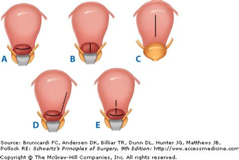 types of c section incisions extra peritoneal cesarean section images frompo 1