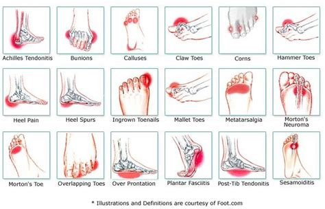 foot diagnosis diagram why your hurt foot chart foot and chart