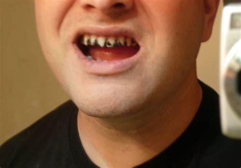 teeth whitening side effects   bright white smile
