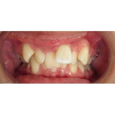 cabinet dentaire bezons encombrement chevauchement dentaire cabinet