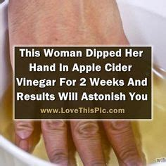 Does Apple Cider Vinegar Detox Lungs by She Dipped In Apple Cider Vinegar For 2 Weeks