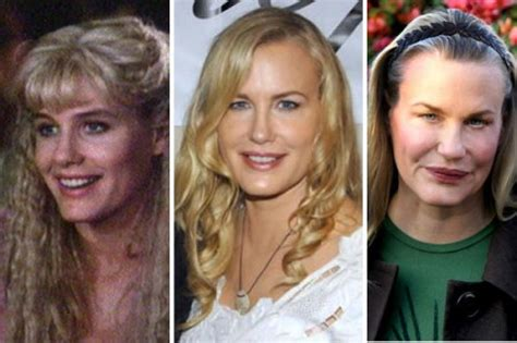marys extreme makeover face nose and body 50 shocking photos of celebrities before and after plastic