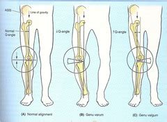 LE Kines - EXAM 2, knee Flashcards | Quizlet Q Angle Genu Valgum