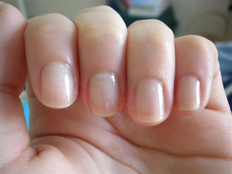 nail bed color nail damage from acrylic nails cpgdsconsortium com