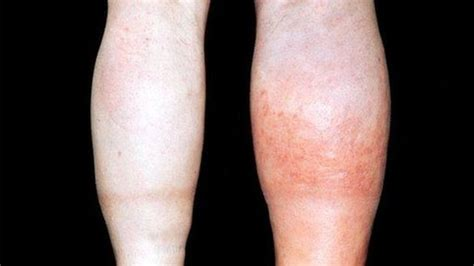 post c section swelling in legs blood clots developed on wards kill hundreds say ams