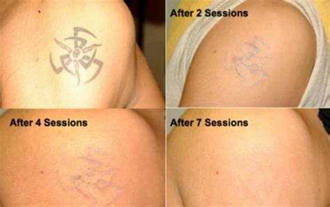 new tattoo easy to remove 25 tattoo removal before and after pictures inkdoneright