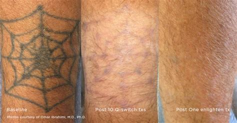 how many treatments for tattoo removal laser removal treatment
