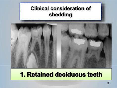 Shedding Of Teeth by Shedding Of Deciduous Teeth