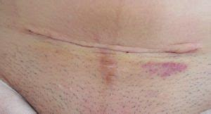 Rash On Buttocks After C Section by