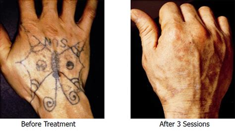 hand tattoo removal before and after laser tattoo removal from hand back to blank