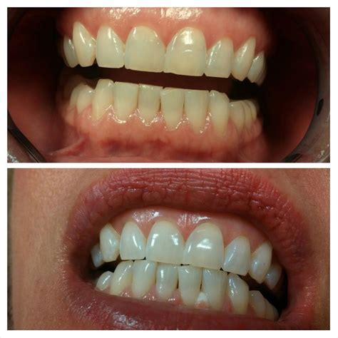 23 best images about Teeth Whitening on Pinterest   Teeth