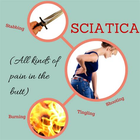 low back sciatica home treatment that works