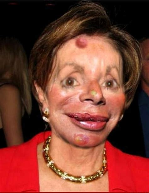 plastic surgery gone wrong plastic surgery gone wrong scary weird stuff pinterest