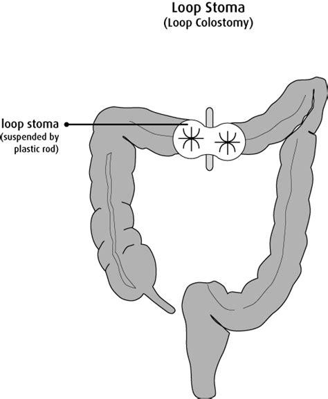 ileostomy diagram diverting loop ileostomy diagram diverting loop ostomy