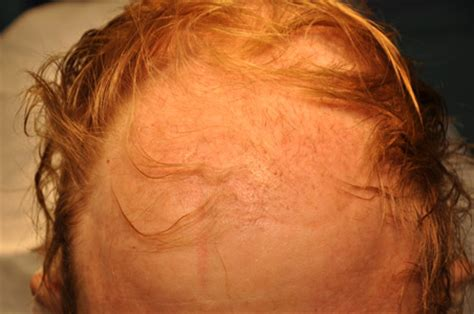 Hair Shedding After Hair Transplant by Growth And Shedding After Hair Transplantation