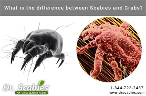 What Is The Difference Between A Dirty Crab And A Clean Crab | what is the difference between scabies and crabs best
