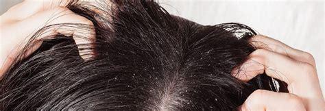 forfora e alimentazione forfora e autunno cosa sta succedendo ai nostri capelli