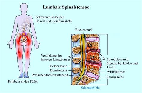 dolori al coccige da seduto spondylarthrose spondylose bandscheibenprotusion