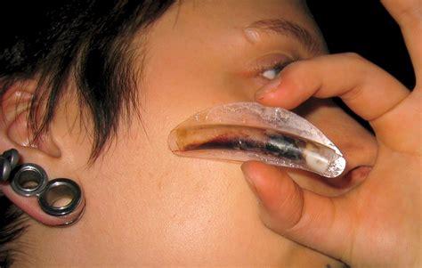 nase verstopft im liegen file doyle splint bionerd jpg