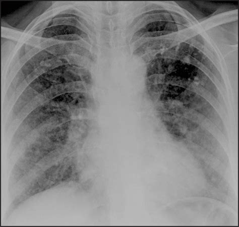 Multiplek Lung yet another pulmonary manifestation of tuberous sclerosis bhawna s sanyal k lung india