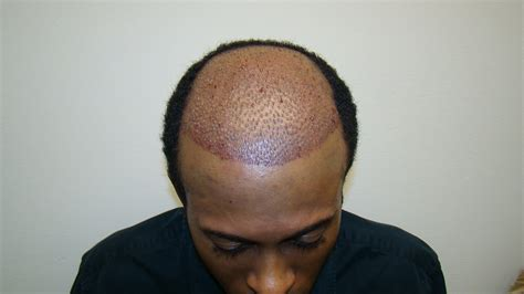 african american hair transplant hair transplant for african american patient dr brett