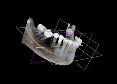 wann ist in den wechseljahren wann ist der dreidimensionale blick in den kiefer