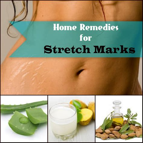 how to get rid of stretch marks naturally remove stretch