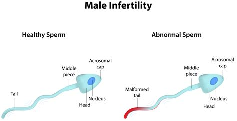 can a c section cause infertility infertility in men my mobile doctor