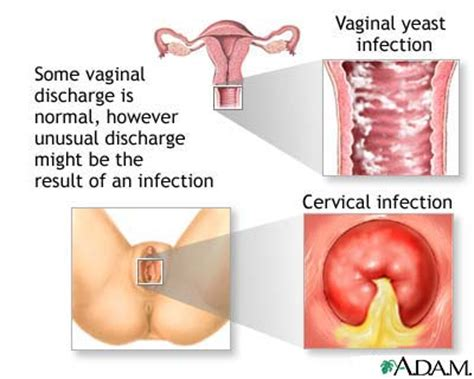 heavy hair on vigina vaginal discharge simple answers to common questions