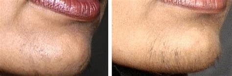 stop womens chin hair growth fashion lifestyle f a o women the growth of unwanted
