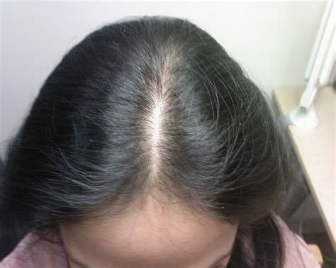 female pattern hair loss stress 17 best ideas about general anaesthesia on pinterest