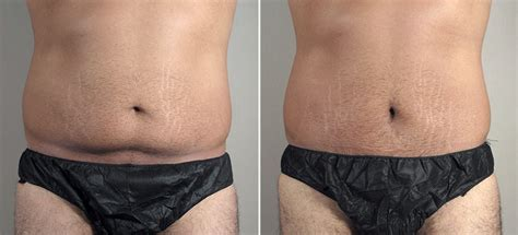 plastic surgery after c section male mini tummy tuck 20 parker center for plastic surgery
