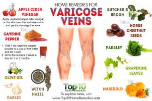 home remedies for varicose veins home remedies for varicose veins top 10 home remedies