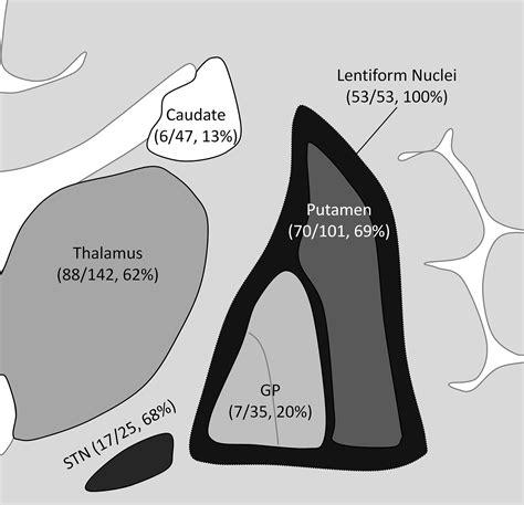 10 avenue 11th floor boston ma localization of basal ganglia and thalamic damage in