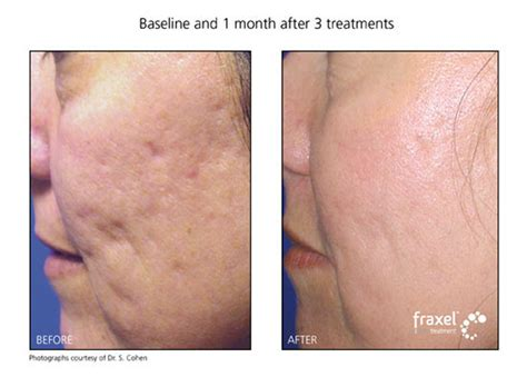 Acne Serum Zahra Skincare Pink acne scars philadelphia about skincare
