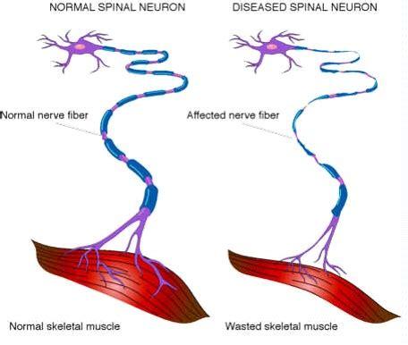 als motor neuron about als brainstorm