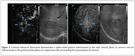 Contrast Enhanced Ultrasound And Liver Imaging Review Of The Literature by New Onset Focal Nodular Hyperplasia In A Patient With Viral Hepatitis A Report Omics