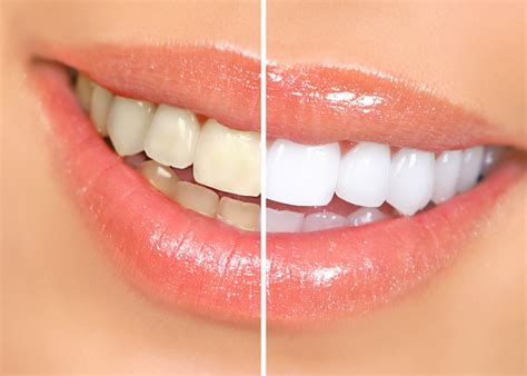 wwwgentledentalabroadcom professional teeth whittening