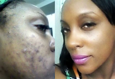 african american scar removal cream how to restore sun injury for naturally lovely pores and