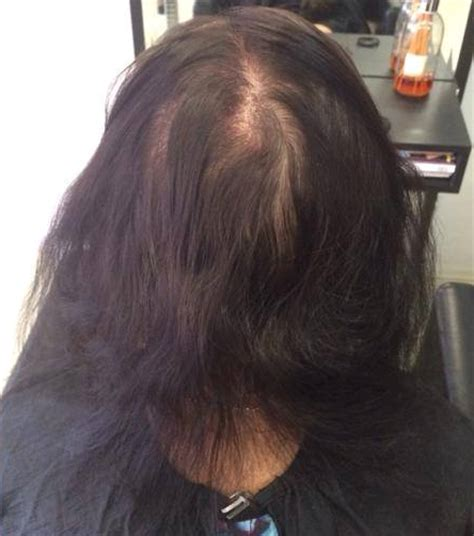 thinning hairline weave natural hair vs weave does weave wigs grow your hair