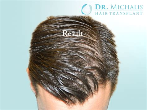 permanent head hair without surgery hair transplant without shaving head unshaved hair