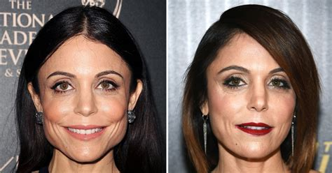 bethenny frankel plastic surgery before and after bethenny frankel botoxes her jaw denies plastic surgery