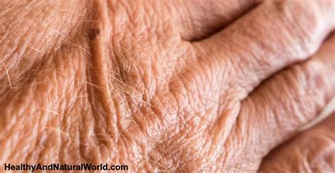 crepey skin on arms crepey skin causes and effective natural treatments