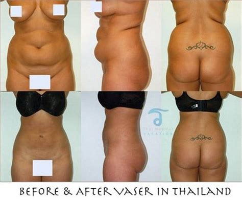 lipo light vs coolsculpting vaser hidef liposuction in bodysculpting