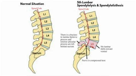 Grade 1 Anterior Listhesis by Med Educational Lumbar Spondylolisthesis Grade 1 And 2