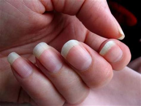 dent in nail bed what causes dents in fingernails and toenails skin