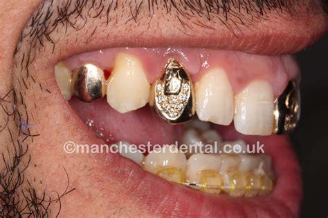 1 lakeside avenue room 129 1st floor cleveland ohio 44113 dental crown vs cap dental crowns a fix that goes a