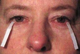 test di schirmer la clinica oculistica virtuale occhio secco