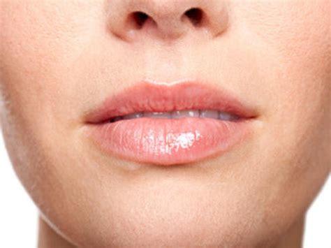 herpes bocca interno rimedi naturali per l herpes labiale notizie it